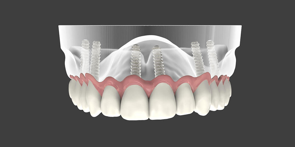 Dental Implant Supported Dentures in NYC