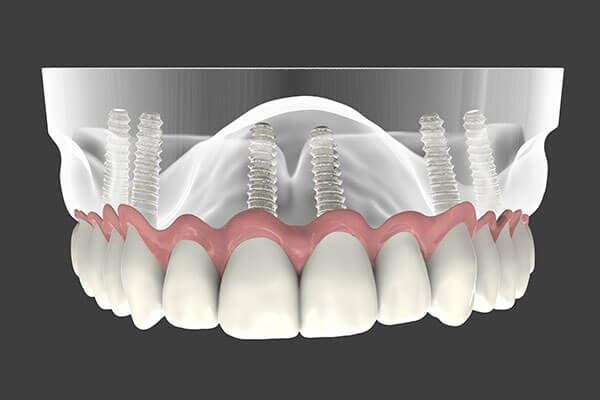 Implant Supported Dentures in Midtown