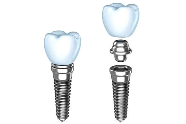 Single Dental Implants in Midtown Manhattan
